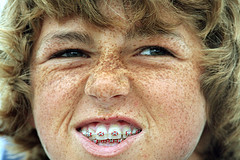 You know what the problem with Brits is, you're the first one they would try braces on....
