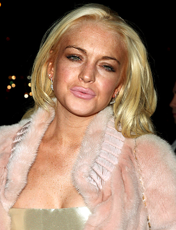 Lindsay Lohan's face in 2009. Notice the difference?